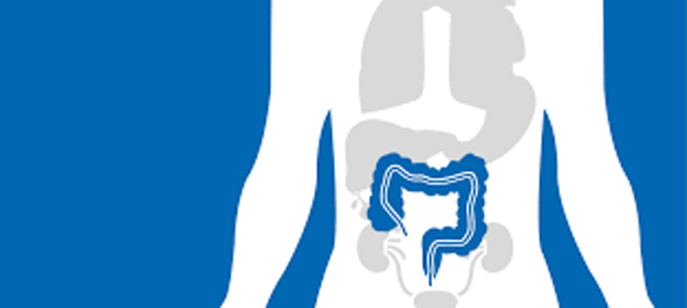 What Causes Colorectal Or Colon Cancer And Its Prevention Management