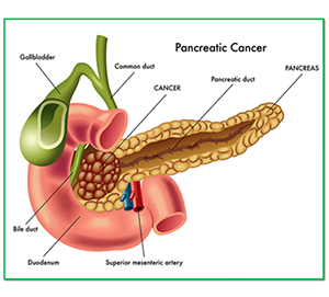 Pancreas Head Cancer