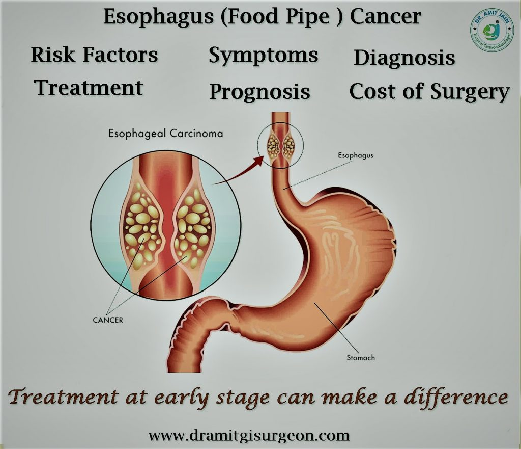 Cancer Oesophagus